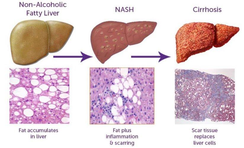 【加拿大肝脏基金会专栏】从脂肪肝到脂肪肝炎的故事
